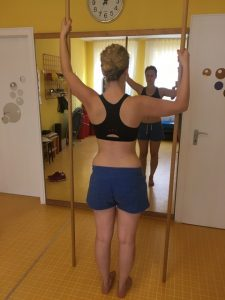Physio Treatment for a Scoliosis